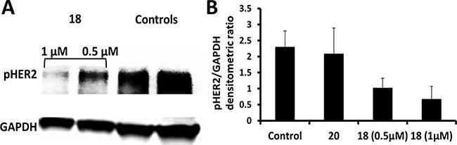 Western blot analysis of phosphorylated HER2.