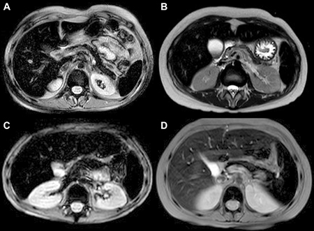 Abdominal MRI T2 FFE (fast field echo) sequences show hypointense liver, spleen, pancreas and bone signal due to abnormal iron deposition.