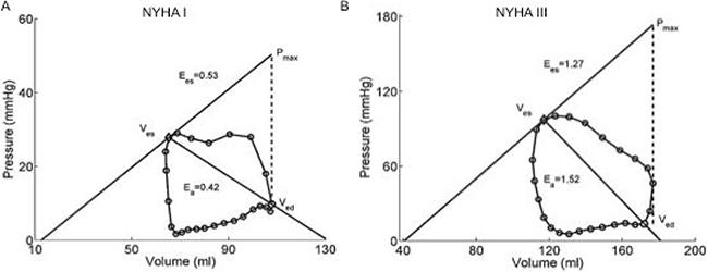 Representative PV loop graphs of NYHA class I patient (Panel A) and NYHA class III patient (Panel B).