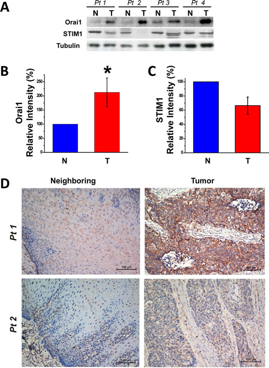 Upregulation of Orai1, but not STIM1, expression in human ESCC tumor tissues and the association between tumor Orai1 expression and prognosis.