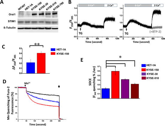 Elevated expression of Orai1 and enhanced SOCE channel activity in human ESCC cells.