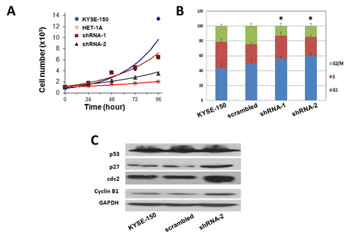 Knockdown of Orai1 suppressed cell proliferation, migration and invasion in ECSS cells.
