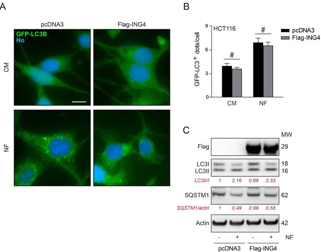 Overexpression of ING4 has not inhibitory effect on starvation induced autophagy.