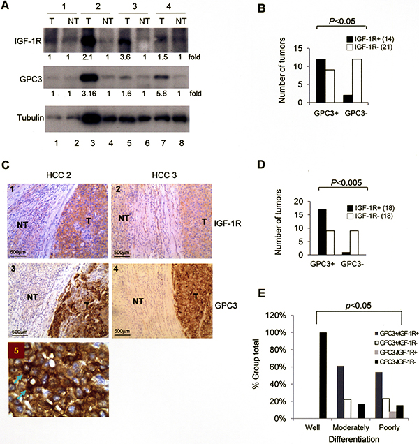 The expression of GPC3 and IGF-1R is correlated in HCC.