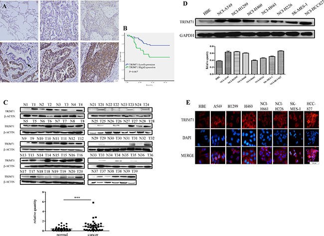 TRIM71 is highly expressed in non-small cell lung cancer and is associated with poor clinical prognosis.