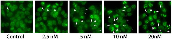 Microscopy analysis of Cabazitaxel treatment.
