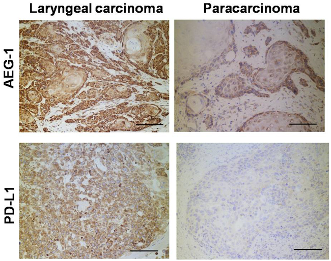 Immunohistochemistry detection of clinical human laryngeal carcinoma samples.