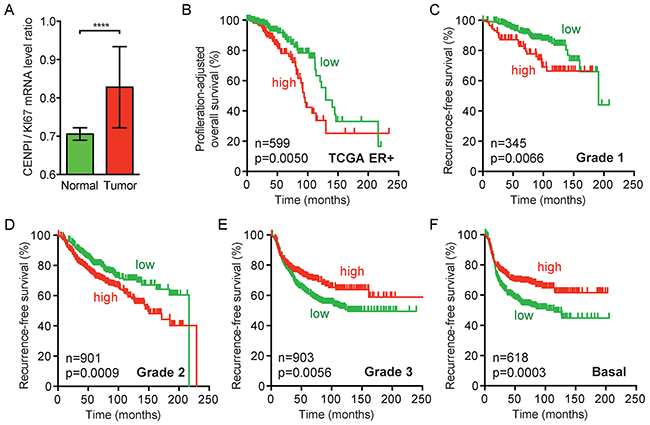 CENPI overexpression in ER+ breast cancer cannot be fully explained by a proliferation-associated effect.