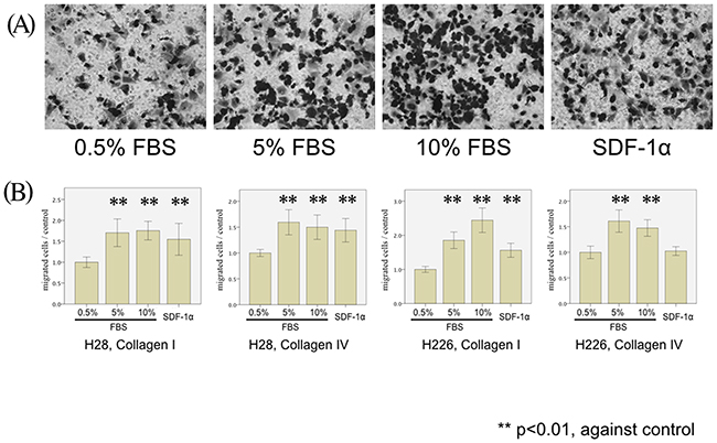 MPM cell migration stimulated by FBS and SDF-1α.
