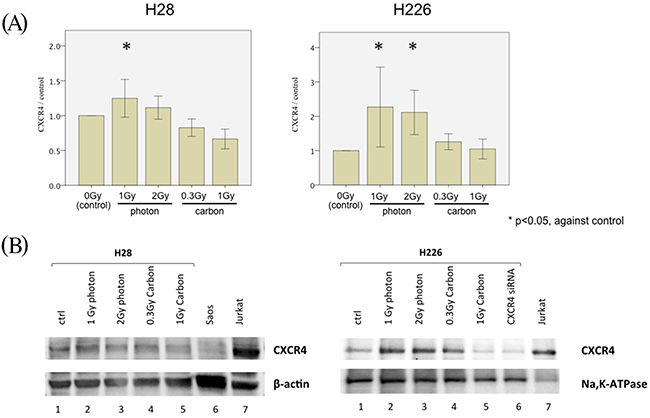 CXCR4 regulation of MPM cell migration following irradiation.