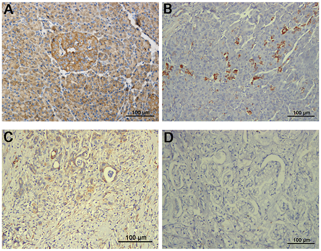 Downregulation of SFRP4 in PDAC and its clinical implications.