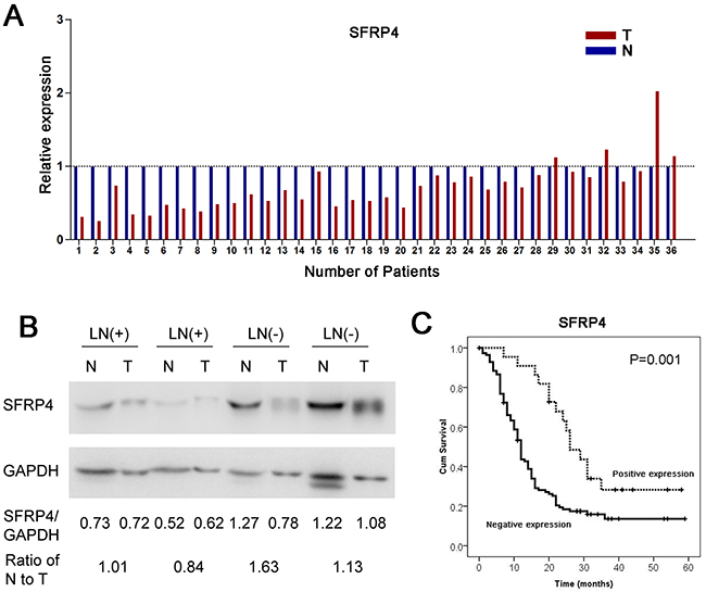 Immunohistochemical expression of SFRP4 protein in cancer tissues and matched adjacent normal tissues from 200 patients with resectable PDAC showed cytoplasmic staining.
