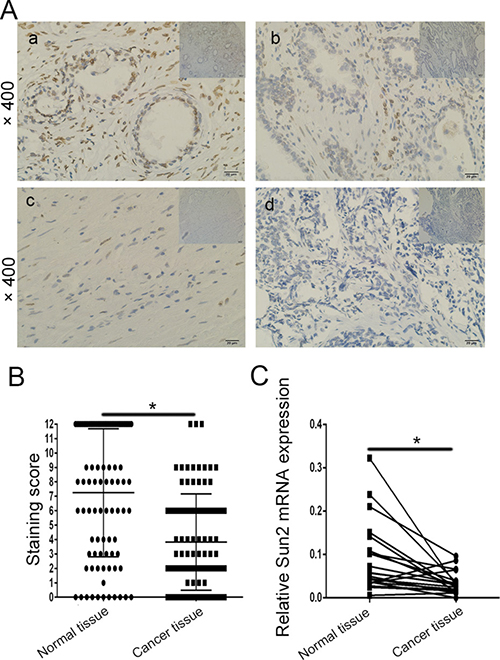 The expression pattern of Sun2 in prostate cancer tissues.