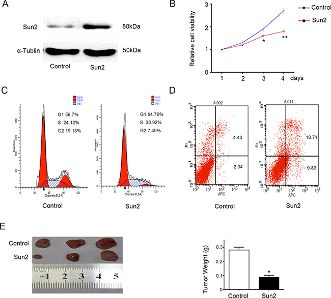Sun2 overexpression inhibits prostate cancer growth.