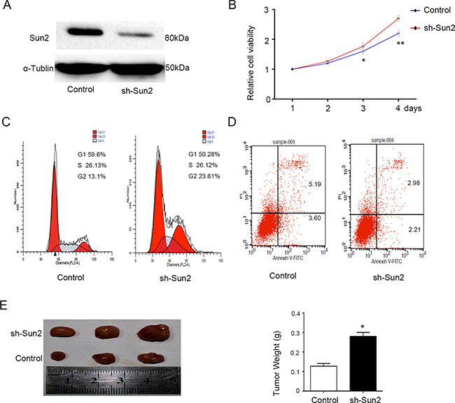 Sun2 knockdownpromotes the prostate cancer growth.