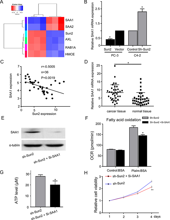 The underlying mechanism of FAO regulated by Sun 2 in prostate cancer.