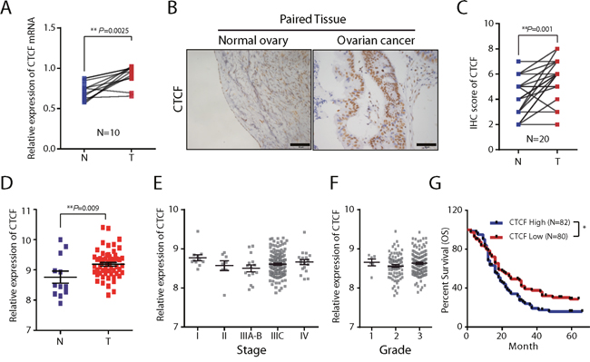 The expression and clinical significance of CTCF in ovarian cancer.