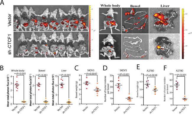 CTCF knockdown suppresses ovarian cancer metastasis in vivo.
