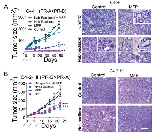 MFP improves the therapeutic effects of Nab-paclitaxel only in mammary carcinomas showing higher levels of PRA than PRB.