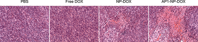 The histopathologic changes in glioma after treatment with various DOX formulations was measured by H&E staining.