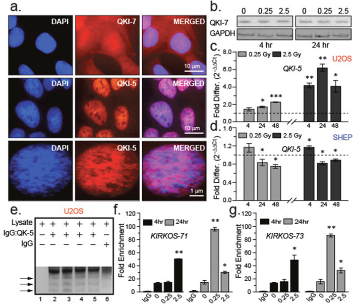 QKI isoforms differ in their intracellular distribution and response to irradiation exposure.