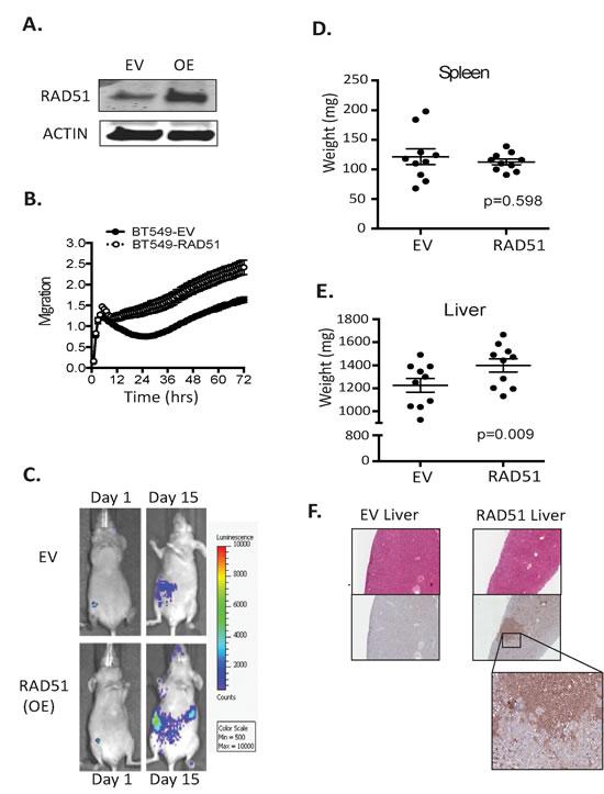 RAD51 can transform poorly metastatic cells.