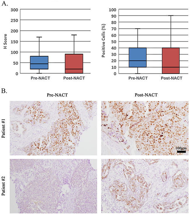 CCNE1-overexpressing cell population is not enriched following NACT.