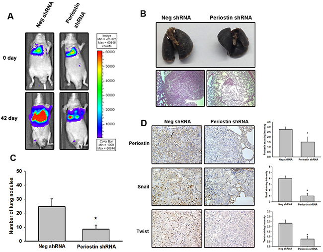 Knockdown of periostin expression represses tumor growth in vivo.