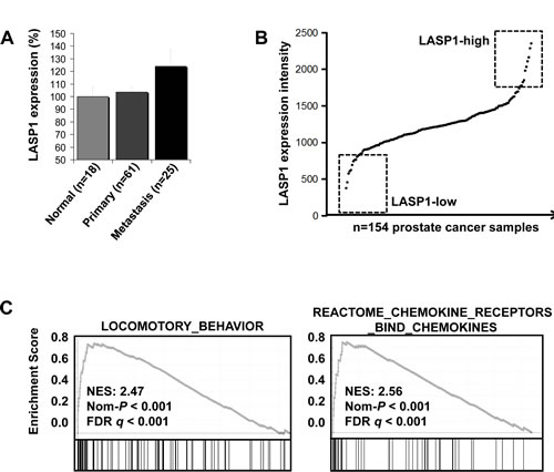 LASP1 mRNA expression is increased in prostate cancer metastases and is associated with pathways involved in cell migration A: LASP1 is significantly overexpressed in PCa metastases compared to parental primary tumors and normal prostate epithelial cells (p=0.028; Student´s t test metastasis
