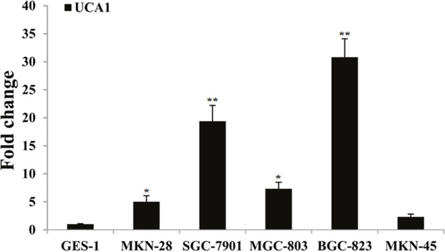 Results of UCA1 relative expression level between gastric cancer cells and normal gastric mucosa cell, respectively.