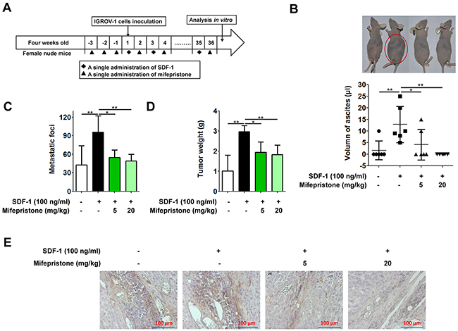 Mifepristone suppresses peritoneal metastasis of human ovarian cancer cells in the nude mice.