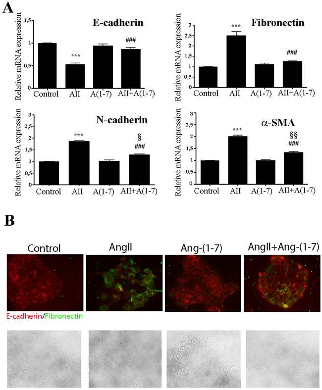 Ang-(1-7) abolish AngII-induced EMT in the non-tumorigenic mammary cell line NMuMG.