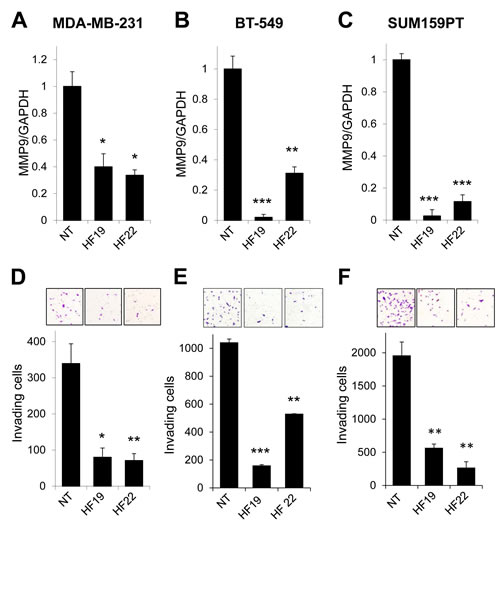 MMP9 silencing inhibits invasion in models of basal-like, triple negative breast cancer.