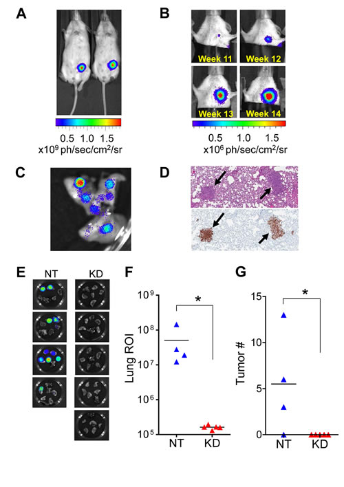 MMP9 silencing blocks metastasis to lung in mouse orthotopic model.