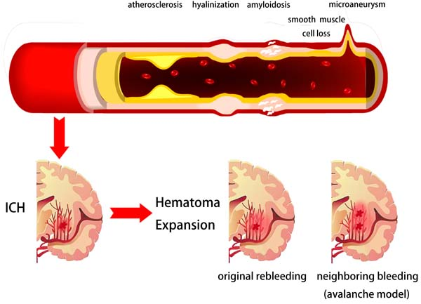 Figure 1</a>: Potential pathophysiological mechanisms of intracerebral hemorrhage and hematoma expansion.