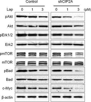 CIP2A knockdown sensitizes BT474/LR cells to lapatinib-induced inhibition of oncogenic signal transduction.
