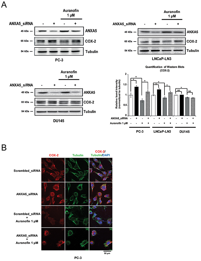 Rescue of cyclooxygenase 2 (COX-2) expression in auranofin-treated prostate cancer cells by inhibition of annexin A5.