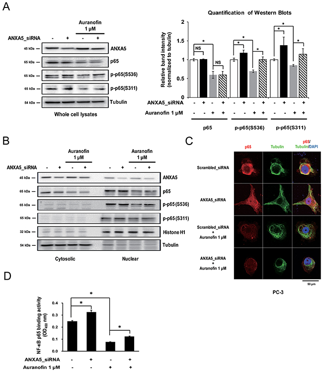 Phosphorylation of the nuclear factor-κB (NF-κB) p65 subunit by inhibition of annexin A5.