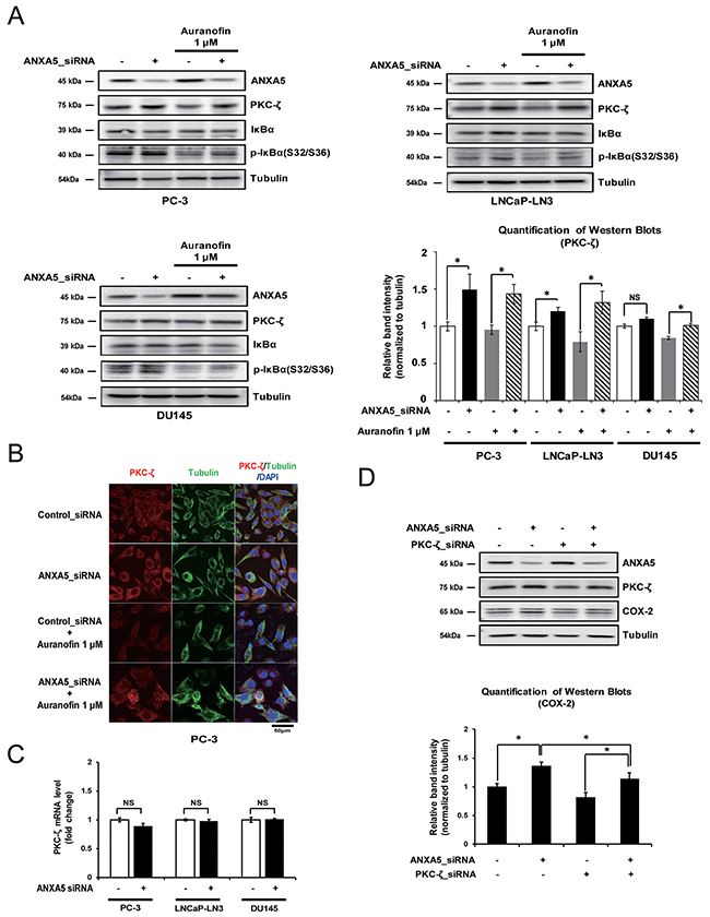Effect of annexin A5 on protein kinase c (PKC)-ζ expression.