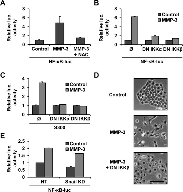 MMP-3-induced Snail upregulation is dependent on NF-κB.