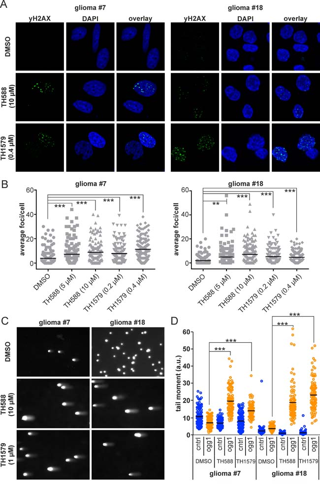 Inhibition of MTH1 induces DNA damage in GBM cells.