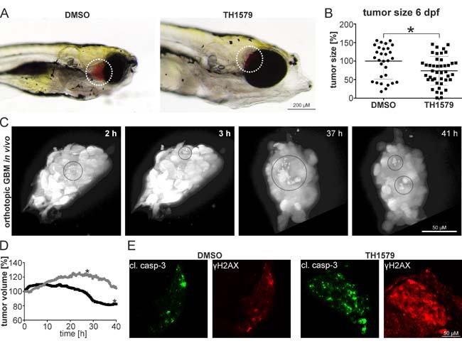 MTH1 inhibitors target GBM and GBM stem cells