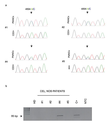 (A) Representative chromatograms of KIT exon 10 sequence on CEL, NOS patients.
