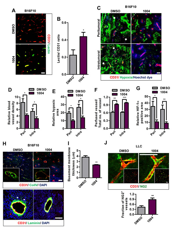 Sac-1004 improves vascular perfusion, alleviates hypoxia and normalizes tumor blood vessels in tumors.