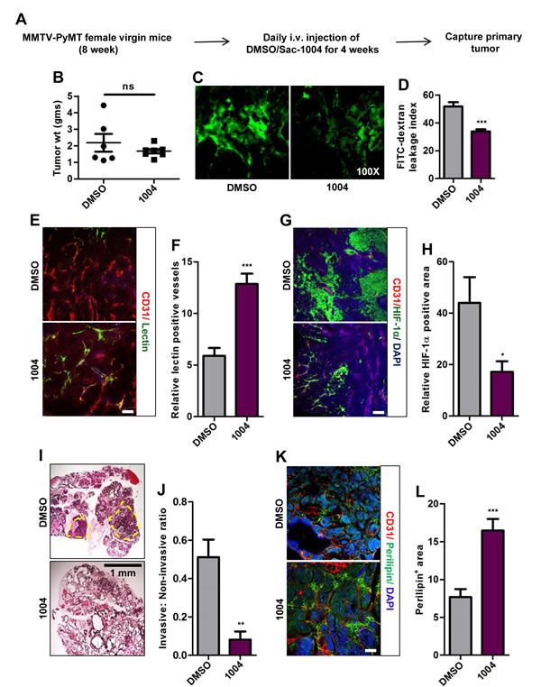 Sac-1004 reduces vascular leakage, HIF-1α expression and malignancy of breast tumor in MMTV-PyMT mice model.