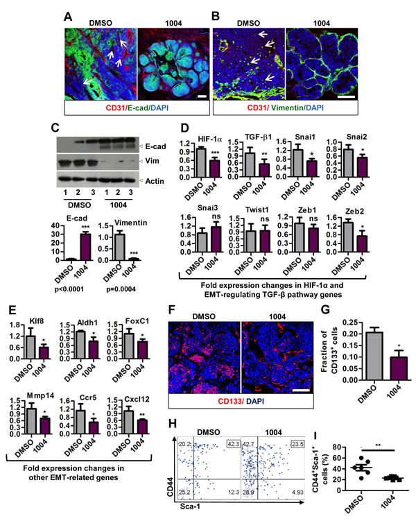 Sac-1004 hinders epithelial-to-mesenchymal transition by affecting related genes and also reduces cancer stem cell population.