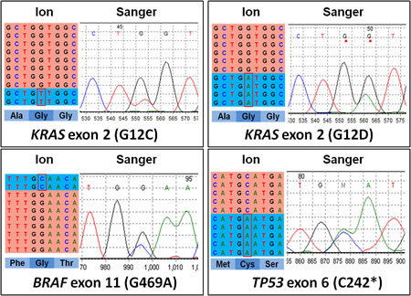 Representative examples of validation by Sanger sequencing of mutations identified using next generation sequencing.