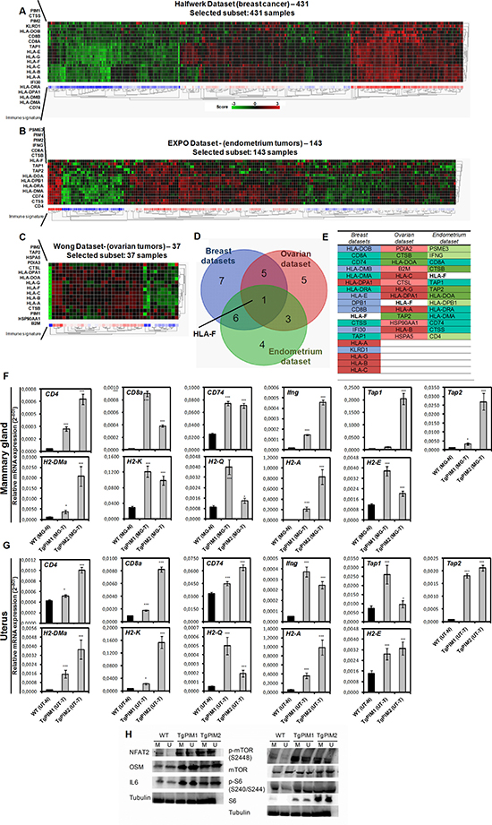 PIM overexpression correlates with an immune system-dependent genes signature in human breast, endometrium and ovary tumors.