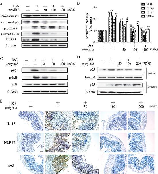 Oroxylin A suppressed the activation of NLRP3 inflammasome in DSS-induced chronic colitis.
