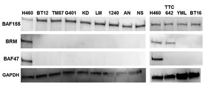 In a western blot analysis, 11 Rhabdoid cell lines were probed for BRM, BAF47 and BAF155 expression where H460 was used as the positive control.